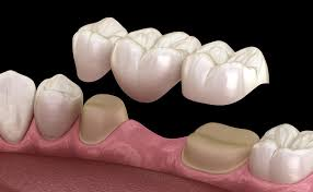 puente sobre dientes